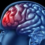 علائم ضربه مغزی ودرمان آن